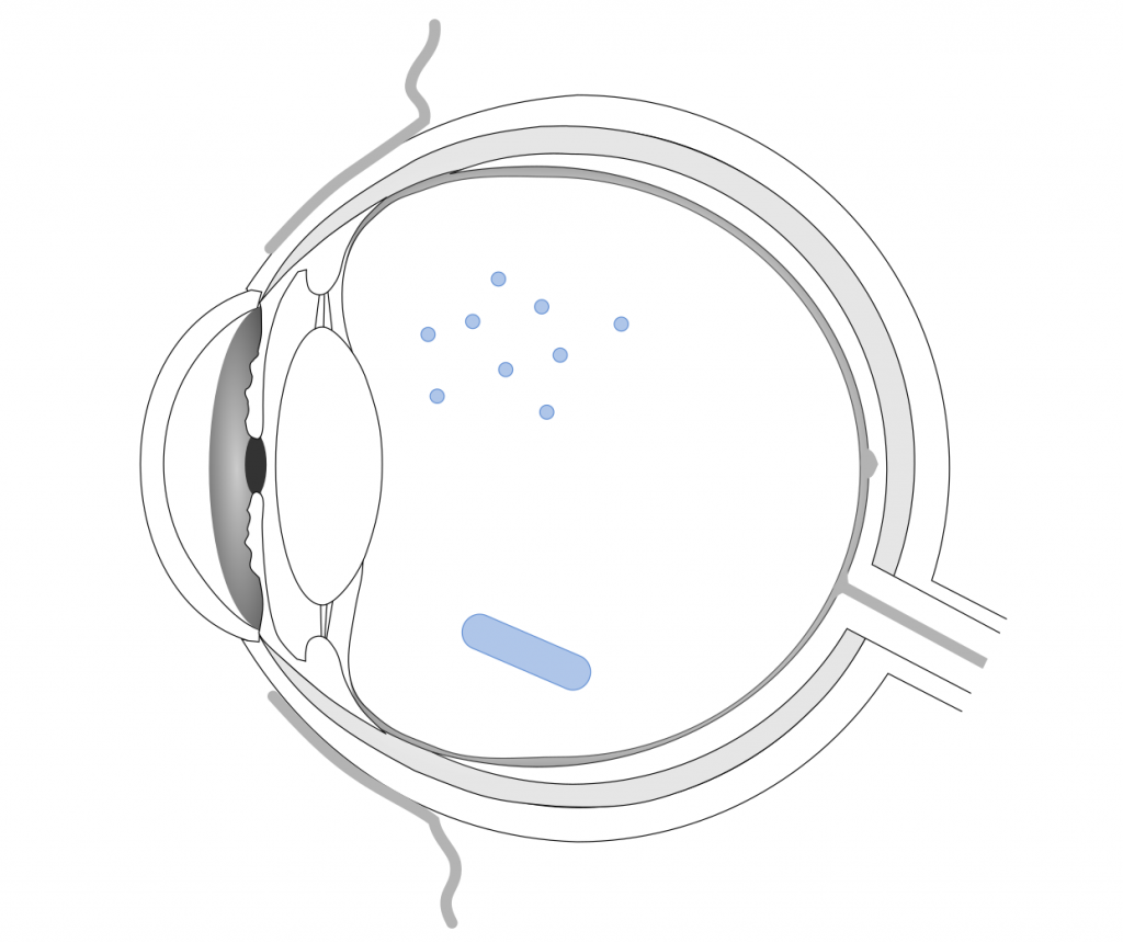 Eye scheme with polymer particles and rod-shaped implants in the vitreous compartment