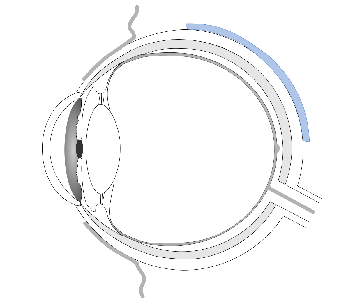 Eye with scleral buckle on the surface